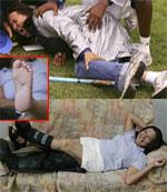 """2007年夏季,在巴西圣保罗进行的""""巴西杯""""全国田径冠军赛上,一名标枪运动员在热身时将投出的标枪刺穿了裁判洛伦索的脚。洛伦索随后被送往医院进行手术。"""